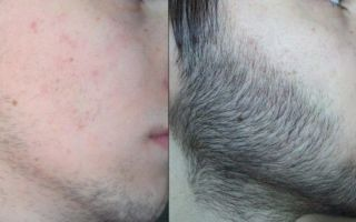 Репейное масло для бороды: как использовать для роста, рецепты с красным перцем и другими ингредиентами, отзывы