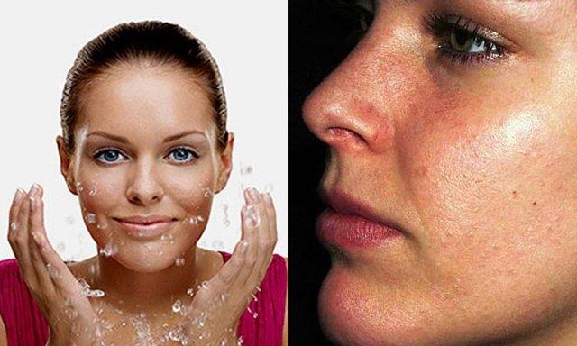 Кремы и мази от черных точек на лице: какие выбрать, обзор лучших, в том числе ихтиоловой, ретиноевой, салициловой и других, отзывы