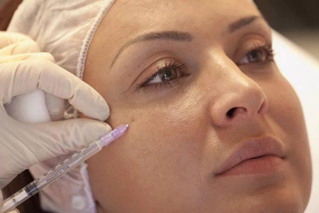 Мезотерапия от темных кругов под глазами: борьба с синяками и морщинами, особенности процедуры и отзывы