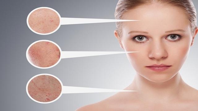 Купероз на лице: что это такое, причины появления и лечение, в том числе в домашних условиях, фото