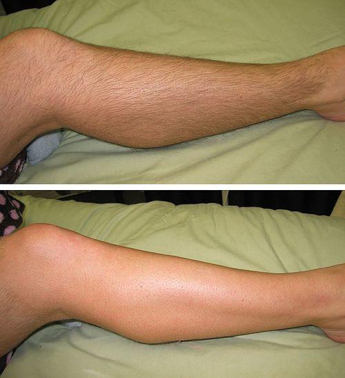 Эпиляция ног воском: как правильно делать с помощью полосок, отзывы