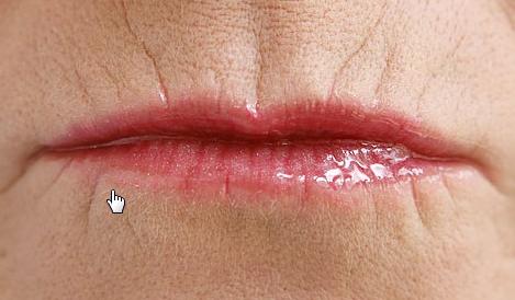 Морщины вокруг рта: как убрать быстро и надолго, в том числе в домашних условиях