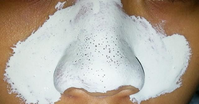Как выдавить черные точки на носу и чем можно и нельзя это делать в домашних условиях, видео