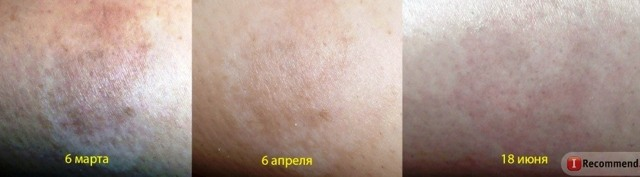 Бадяга от растяжек: отзывы, фото до и после, рецепты