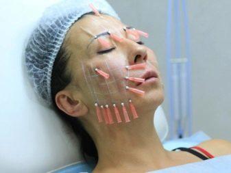 Биоармирование лица: что это такое, особенности, отзывы