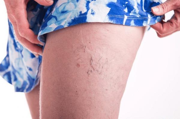 Лазерная эпиляция при беременности: можно ли делать, особенности, альтернатива