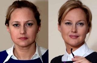 Димексид в косметологии от морщин: рецепты для лица, отзывы