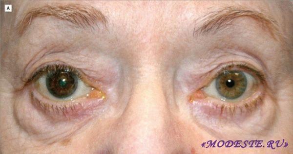 Карепрост для роста ресниц: что это, отзывы с фото до и после, побочные эффекты и возможный вред для здоровья