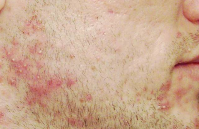 Как убрать раздражение после бритья, почему появляется и как избежать