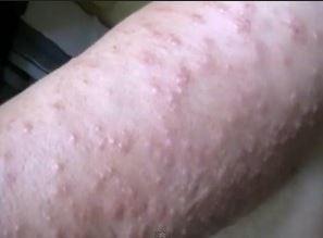 Аллергия на солнце и фотосенсибилизация: симптомы и лечение фотодерматоза (фотодерматита)