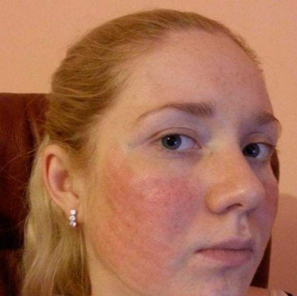 ЭЛОС-омоложение лица: какой эффект дает процедура?