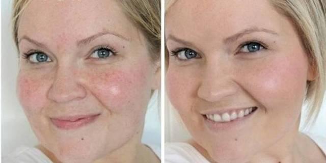 Отбеливающие маски для лица от пигментных пятен: применение в домашних условиях