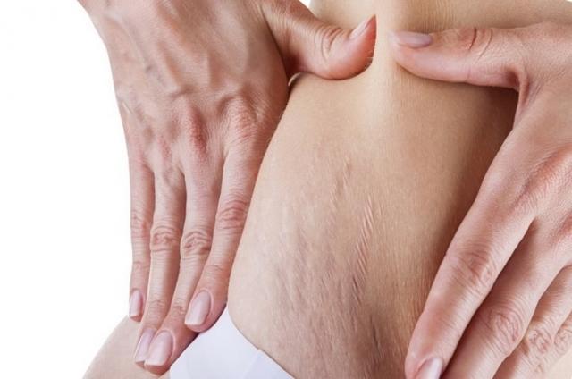 Как избавиться от растяжек на груди: способы борьбы и средства