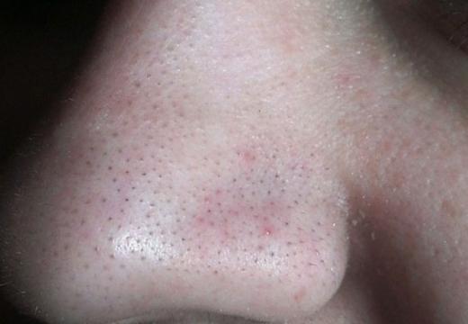 Цинковая мазь от черных точек на лице: как выбрать препараты с цинком при открытых комедонах, отзывы