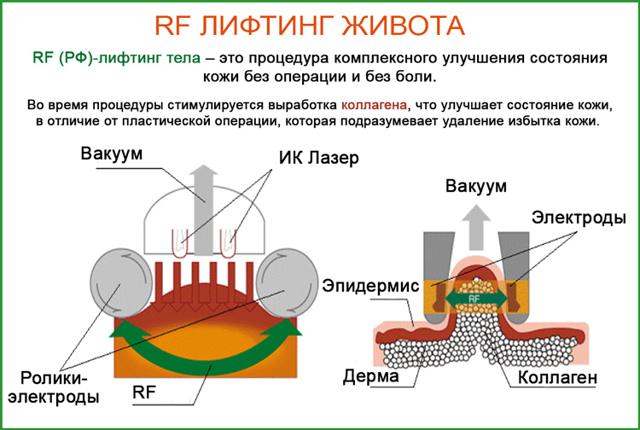 rf лифтинг живота: особенности, противопоказания, фото до и после, отзывы