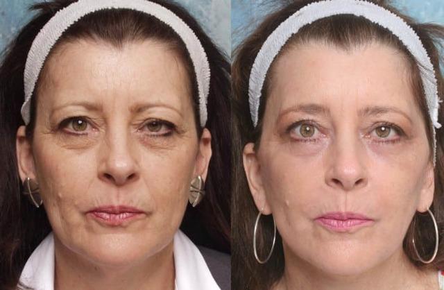 Плазмолифтинг тела и лица: что это такое, побочные эффекты, фото до и после, отзывы