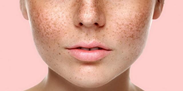 Корейские кремы от пигментных пятен на лице: как выбрать и применять, отзывы
