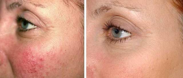 Лечение купероза на лице троксевазином: как пользоваться, отзывы