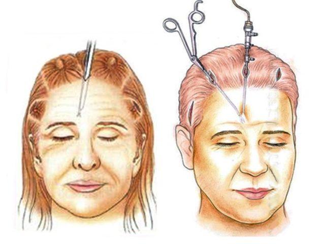 Эндоскопическая подтяжка лба: что это, возможные последствия, фото до и после, отзывы