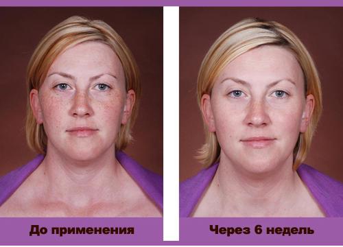 Гидрохинон от пигментных пятен: в каких кремах содержится, запрещен ли в России, отзывы