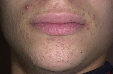 Как избавиться черных точек на лице: эффективные методы удаления и лечения открытых комедонов, в том числе в домашних условиях, видео