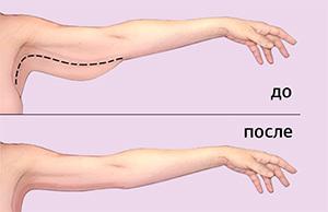 Как подтянуть кожу на руках: борьба с обвисшей кожей, средства и упражнения в домашних условиях