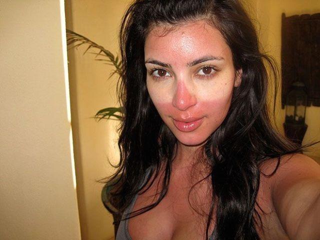 Обгорело лицо на солнце до красноты и сгорел нос: что делать, как и чем убрать покраснение кожи