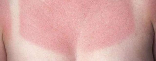 Что делать, чтобы не загорать на солнце и не обгорать