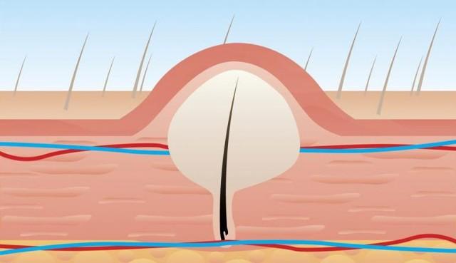 Как правильно пользоваться эпилятором, как уменьшить боль и избежать вросших волос
