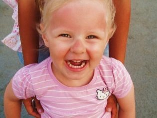 Солнечный ожог у ребенка: как он проявляется и что делать