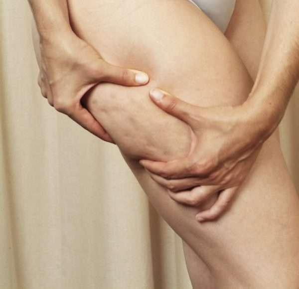 Целлюлит: что это такое, от чего появляется, в том числе у худых, способы лечения у мужчин и женщин, отзывы