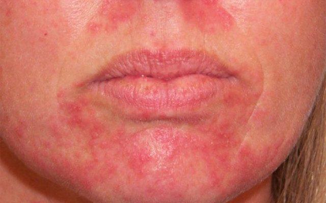 Эпиляция на лице для женщин: способы, как снять раздражение после процедуры, отзывы
