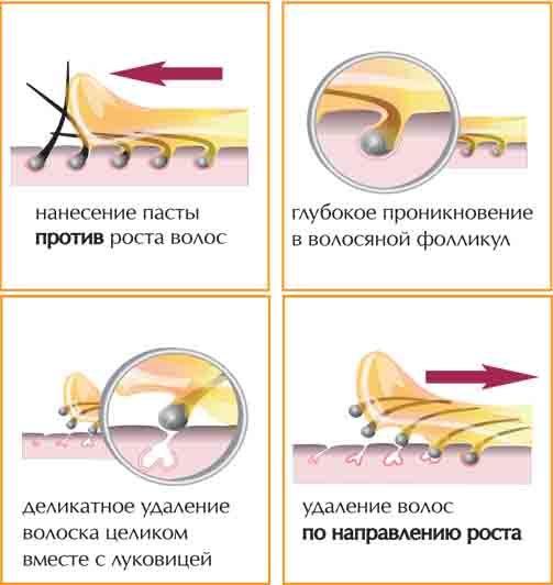 Депиляция ног: как и чем лучше убрать волосы в салоне и в домашних условиях