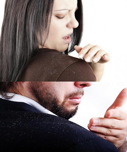 Как быстро и эффективно избавиться от перхоти на голове в домашних условиях, в том числе народными средствами