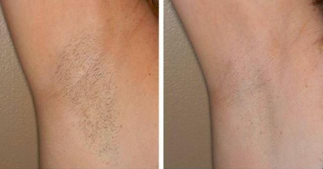 Эпиляция рук: за и против, фото до и после, отзывы