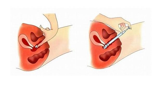 Спермициды: формы выпуска средств, механизм действия, эффективность спермицидных препаратов