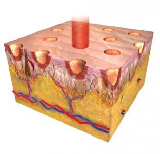 Лазерное омоложение кожи: виды (3d, 4d, 5d, неабляционное, неодимовое и другие), противопоказания, фото, отзывы