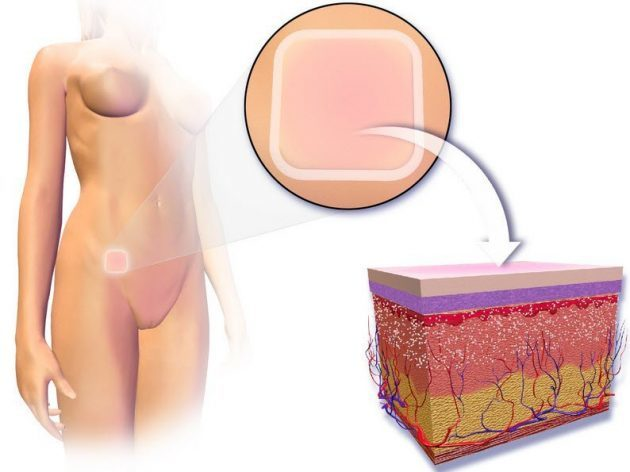 Гормональный противозачаточный пластырь: отзывы, цены, контрацептивный эффект, инструкция по применению