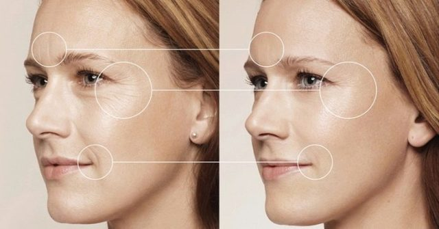 Сыворотки от морщин: какое омолаживающее средство для лица с антивозрастным эффектом выбрать, отзывы