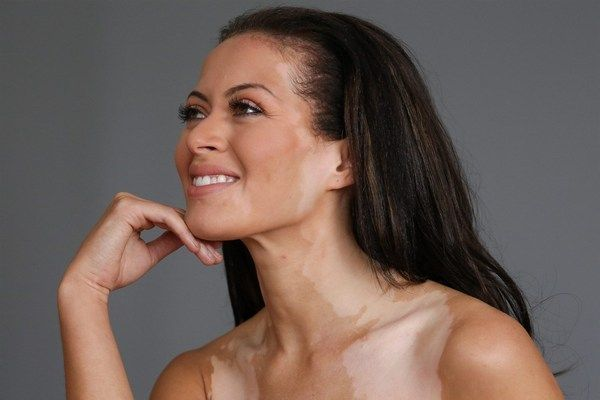 Белые пятна на коже после загара: что это и как лечить, профилактика