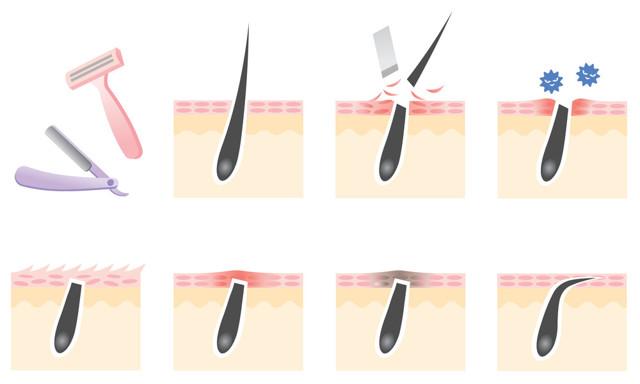 Как брить ноги бритвой правильно, с какого возраста можно начинать, что делать при раздражении, отзывы