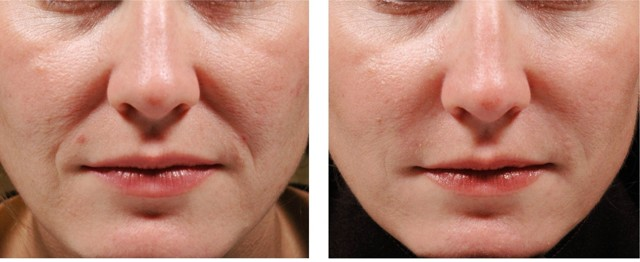 Уколы гиалуроновой кислоты в носогубные складки: фото до и после, показания, отзывы