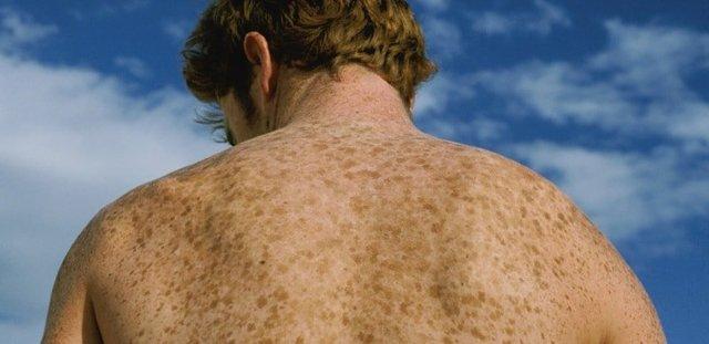 Пигментация кожи на лице, руках и других частях тела: причины и лечение у женщин и мужчин, фото