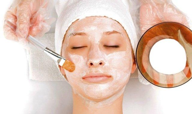 Пигментные пятна на лице: как избавиться в домашних условиях и в салоне, с помощью препаратов из аптеки и другие способы, отзывы