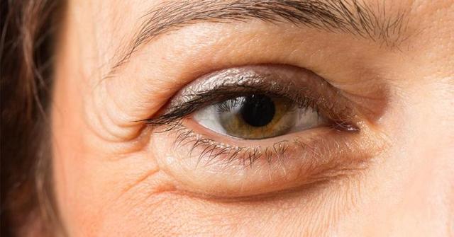 Отеки под глазами: причины появления, примочки и средства лечения, отзывы