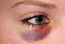 Синяки под глазами у мужчин: причины появления темных кругов и мешков, лечение