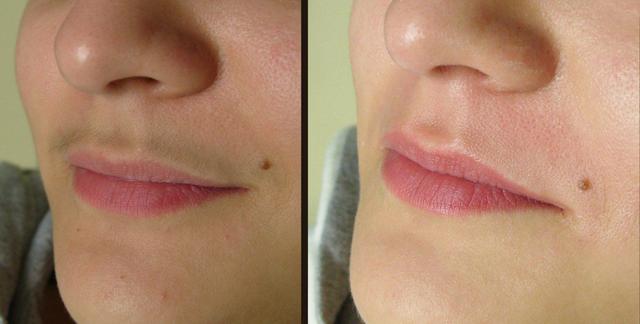 Шугаринг верхней губы: как удалить усики, фото до и после, возможные последствия, отзывы