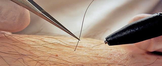 Электроэпиляция: что это, виды, противопоказания и последствия, эффективность, уход за кожей после процедуры, фото до и после, видео, отзывы