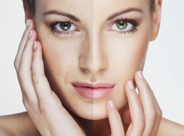 Бадяга от пигментных пятен на лице и теле: правила применения, отзывы, фото