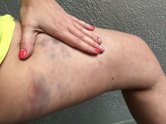 Синяки после антицеллюлитного массажа: нормально ли это, мнение специалистов, как убрать, фото